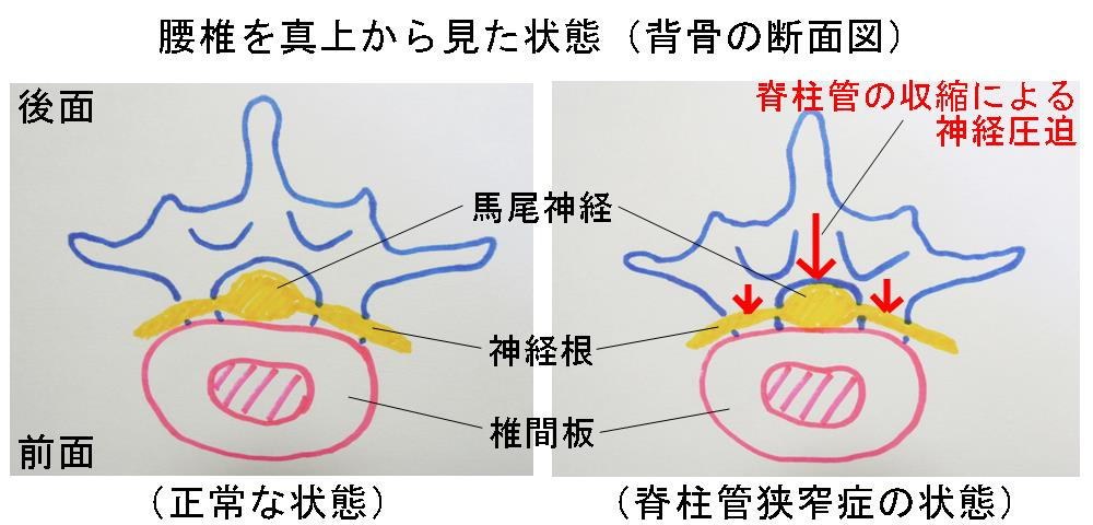 脊柱管狭窄症|生駒市の整体院