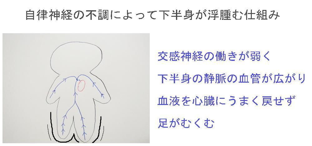 生駒市自律神経専門整体院「理楽ウェーブ」のむくみ画像