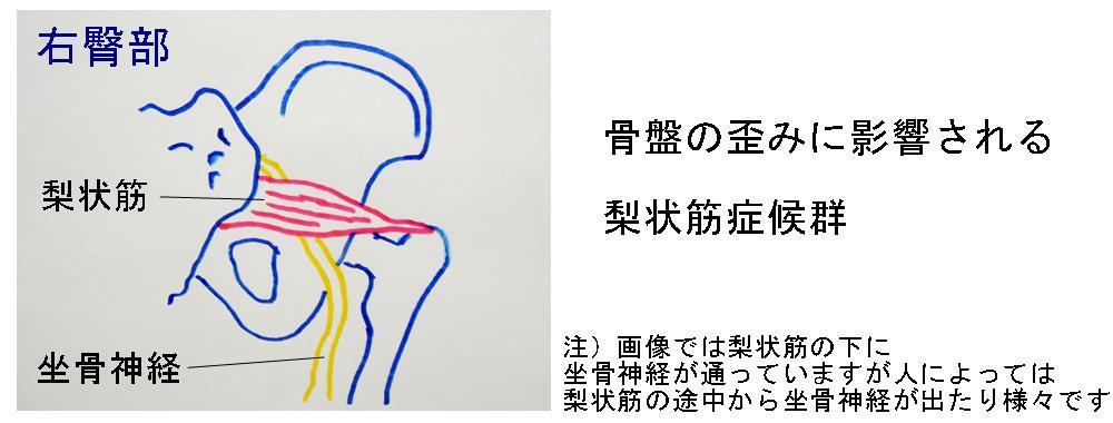 梨状筋症候群の原因|生駒市整体院