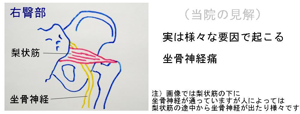 生駒市の整体院の坐骨神経痛の見解3