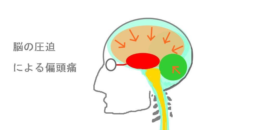 脳の圧迫による頭痛|生駒市整体院