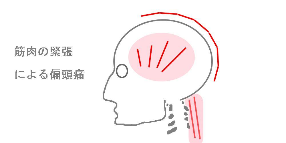 筋肉の緊張による頭痛|生駒市整体院