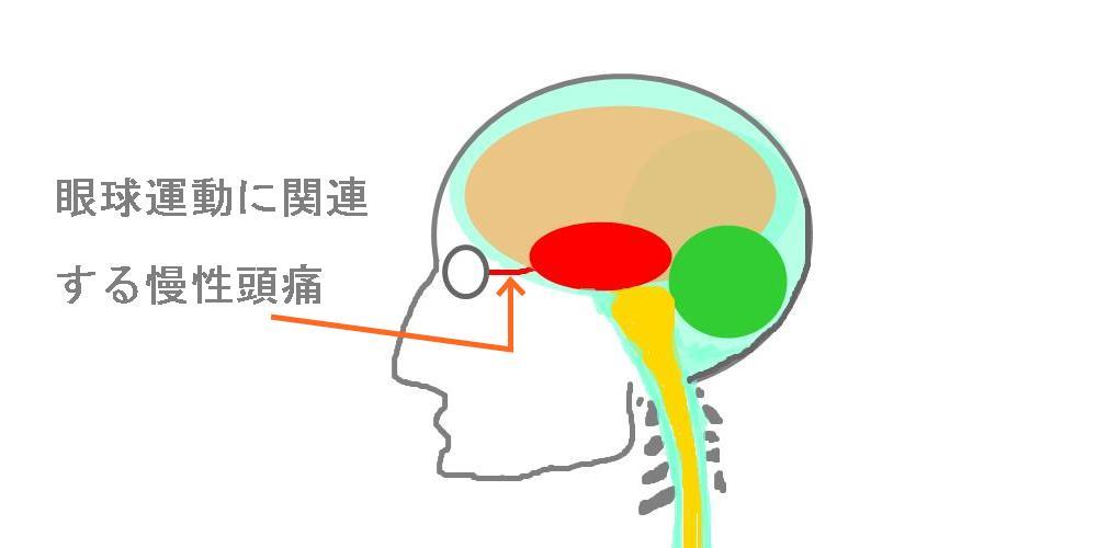 慢性頭痛は眼球運動の低下|生駒市整体院