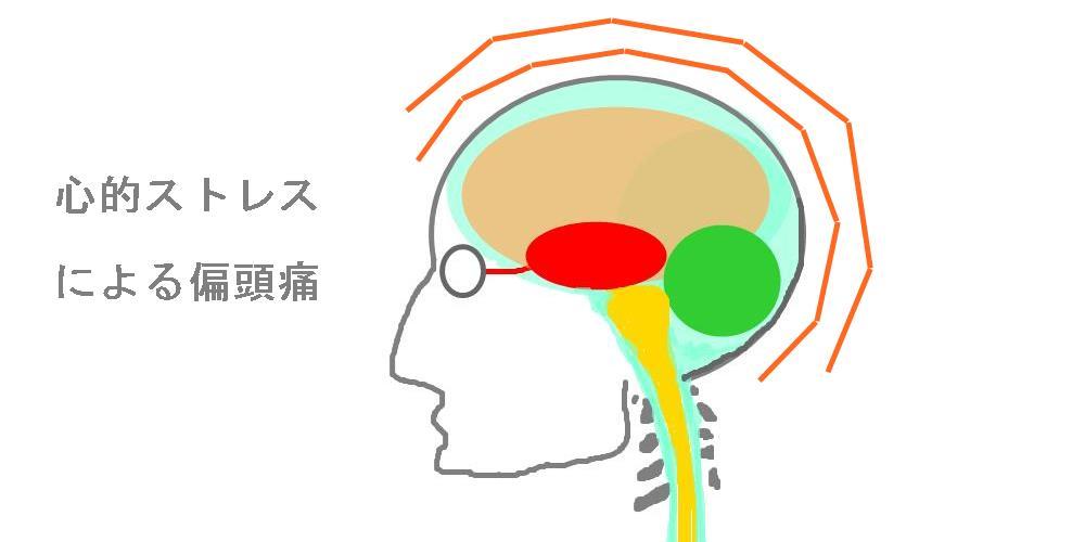心的ストレスによる頭痛|生駒市整体院
