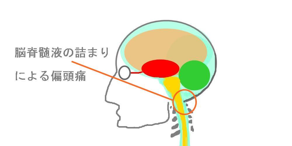脳脊髄液の詰まりによる頭痛|生駒市整体院