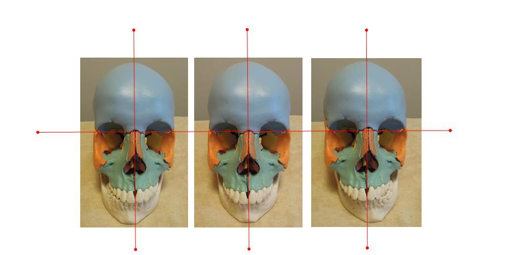 奈良県の自律神経専門整体院の顎関節画像1